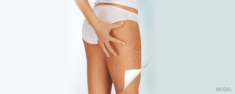 feature-coolsculpting